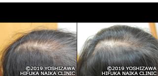 女性頭頂部.png